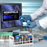 New hemophilia therapy efforts